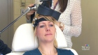 CTV Toronto: The relief of brain stimulation
