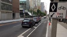 Toronto to narrow street width