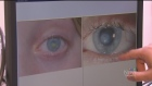 A new procedure could help save the eye sights of