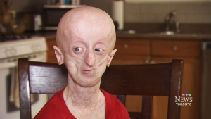 Devin Scullion beat the odds by surpassing progeria's average life expectancy of 14 years.