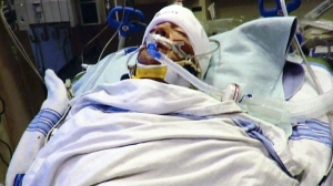 'One-punch' attack results in brain injury