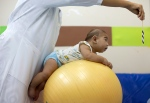 Beijamin Santos who was born with microcephaly undergoes physical therapy at a therapy treatment center in Joao Pessoa, Brazil, Thursday, Feb. 25, 2016. (AP/Andre Penner)