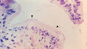 Under low magnification, this photomicrograph reveals some of the changes in small bowel tissue biopsy in a case of cryptosporidiosis due to Cryptosporidium. (CDC/ Dr. Jonathan W.M. Gold)