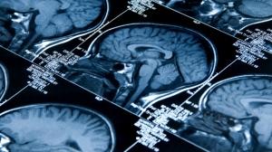 Brain X-ray